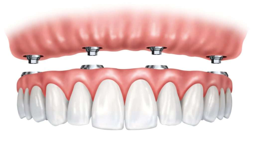 implant-retained denture procedure in Arnold MO