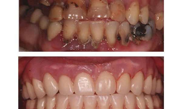 before and after immediate dentures in Arnold MO