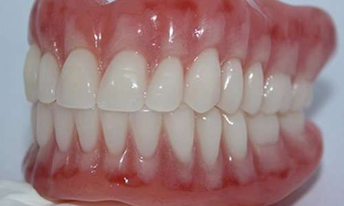 immediate dentures in Arnold MO