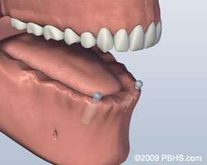 implant placement in Arnold MO