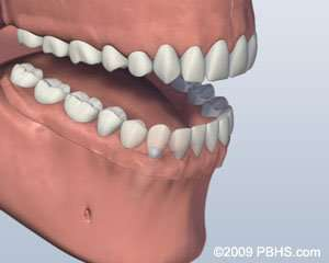 ball attachment implant-retained denture in Arnold MO