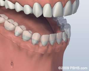 implant-supported dentures in Arnold MO