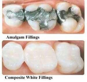 dental fillings in Arnold MO