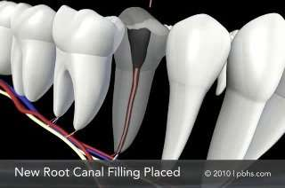 root canal in arnold, mo