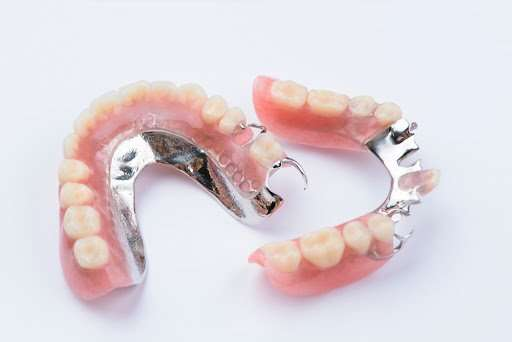 removable partial denture in Arnold MO