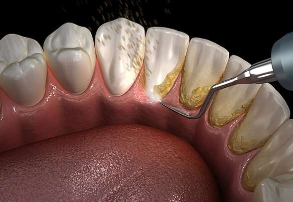 periodontal maintenance in arnold, mo