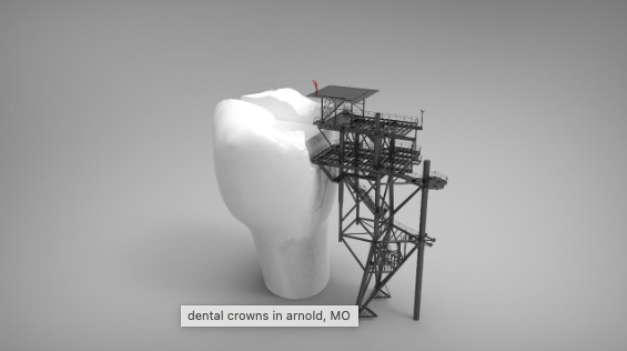 dental crowns in arnold, MO