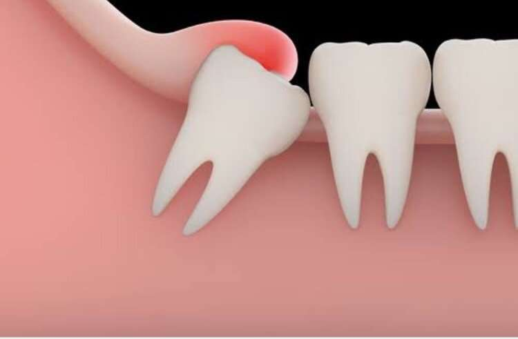 An inflamed gum flap over a partially-erupted wisdom tooth