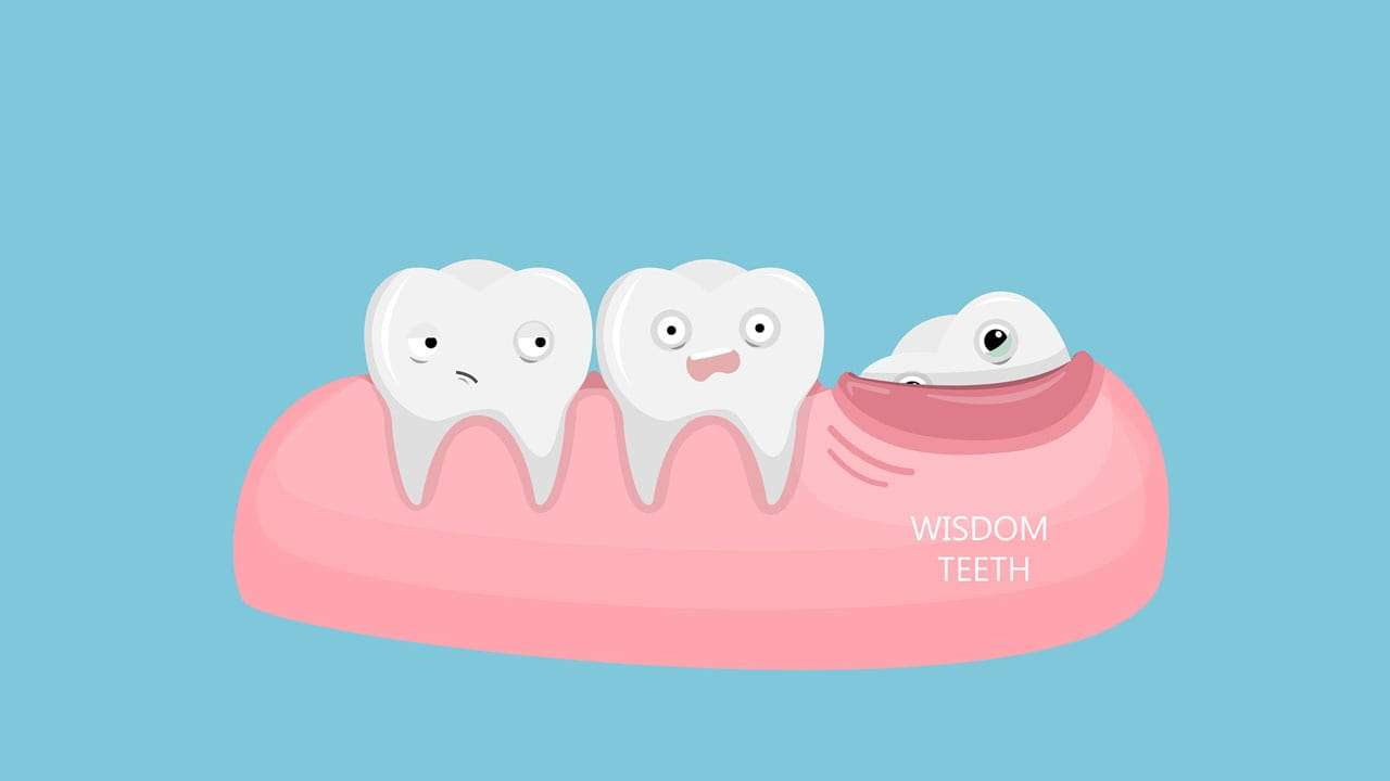 Is It Necessary To Remove Your Wisdom Teeth?