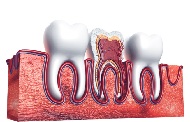 Does A Root Canal Require A Crown?