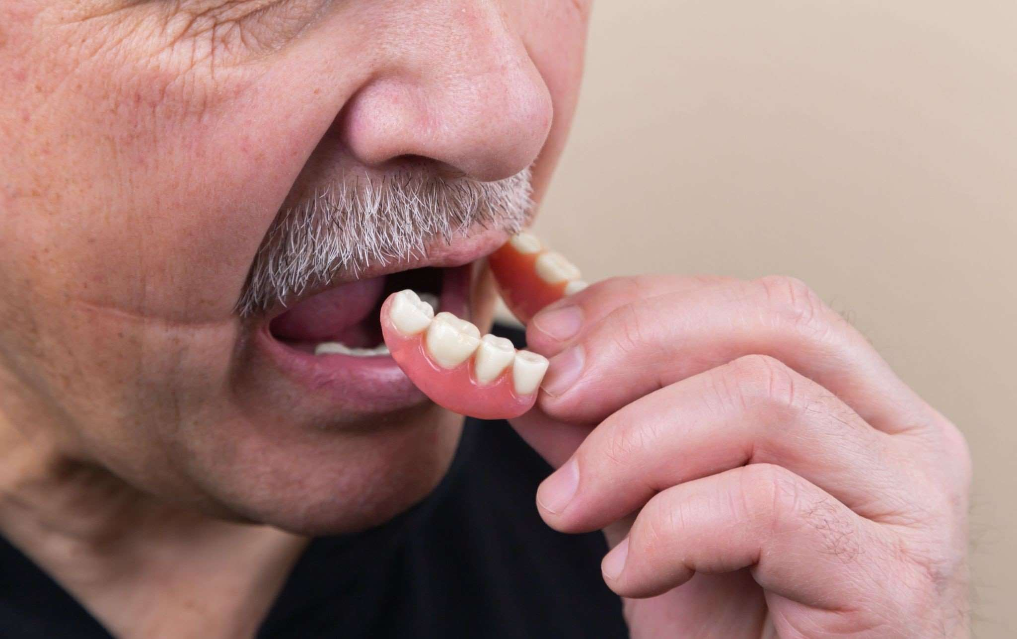 Top Signs You Might Need Dentures