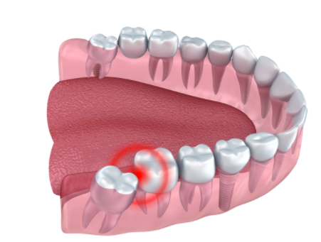 Partially-erupted wisdom tooth