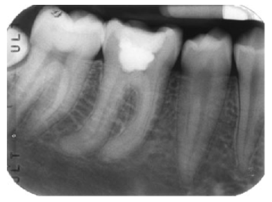 Curved or long tooth roots